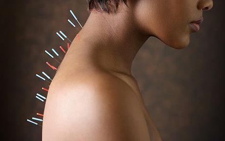agopuntura-tecnica-sicura-bambini-adolescenti