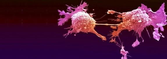 Cellula-tumorale-e1414805677937